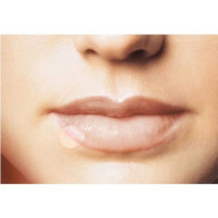 HERPES PATCH bei Lippenherpes 15 mm